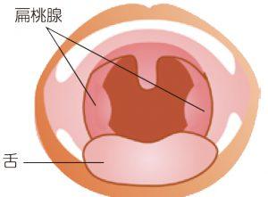 扁桃腺 コロナウイルス症状 扁桃炎との診断ですが、新型コロナの可能性はありますか?