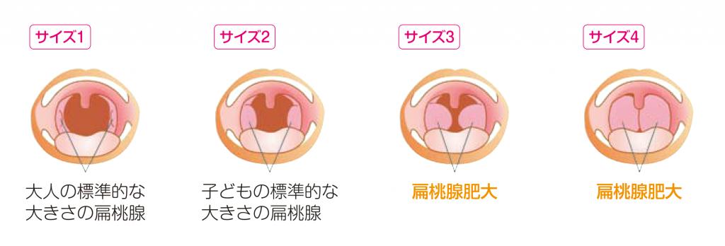 扁桃腺の肥大