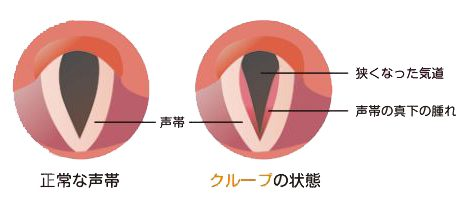 クループ(声門下喉頭炎)